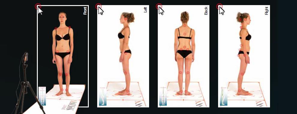 Valutazione posturale computerizzata